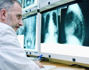 Médico con radiografía